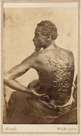 """Scars from whipping cover the back of a slave from Mississippi as he sat for a medical examination at a Union Army camp in Baton Rouge, La., in 1863. The original caption reads """"overseer Artayou Carrier whipped me. I was two months in bed sore from the whipping. My master come after I was whipped; he discharged the overseer. The very words of poor Peter, taken as he sat for his picture."""" Photo by Mathew Brady, National Portrait Gallery, Smithsonian Institution."""